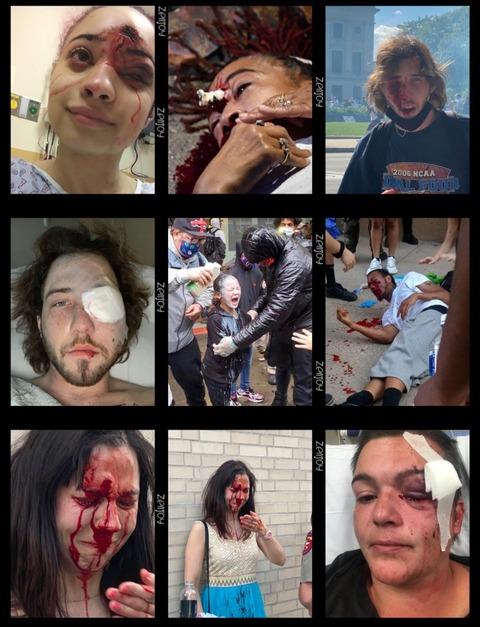 全米警官、人間じゃない‼️ police brutality,unconstitutional!