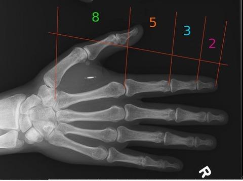 x-ray3