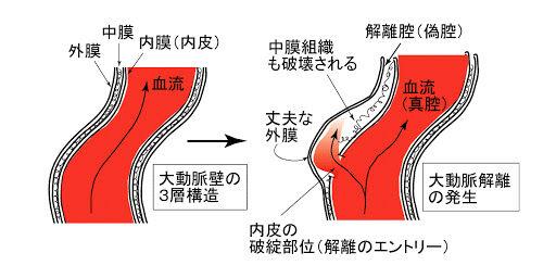 ベルセルク 三浦建太郎 急性大動脈解離 予防 対策に関連した画像-01