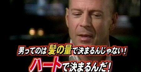 【ハゲ悲報】 日本で若ハゲが急増! アジア1位のハゲ大国へ