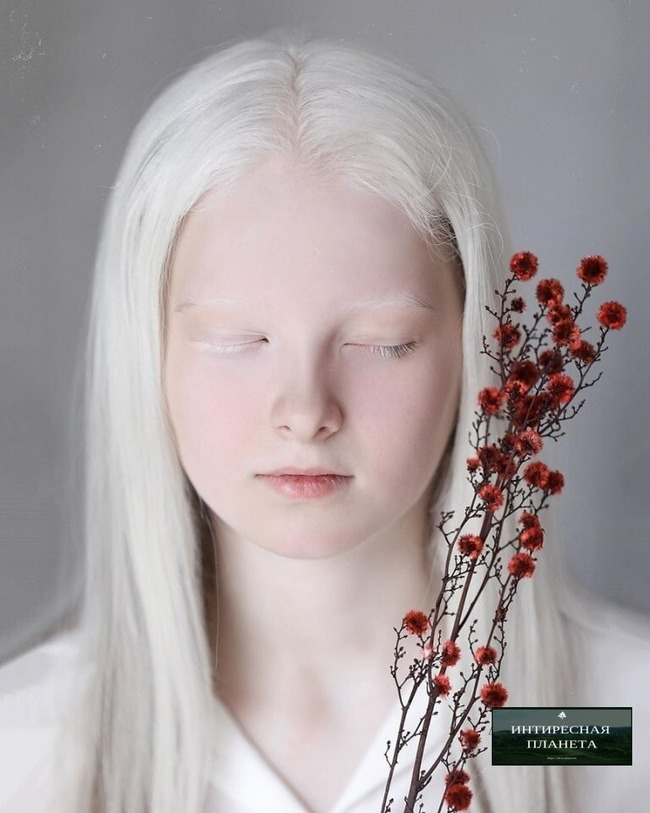 アルビノ オッドアイ ヘテロクロミア 先天性白皮症 虹彩異色症 ロシアに関連した画像-03