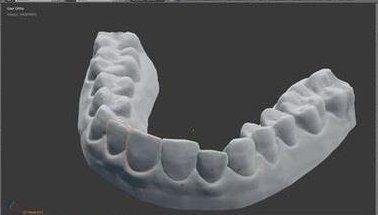3Dプリンター 歯の矯正 自作に関連した画像-01