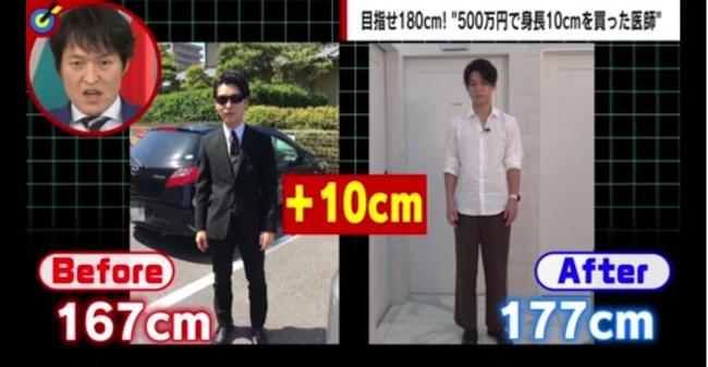 身長 整形外科医 太もも スネ 高身長 500万に関連した画像-04
