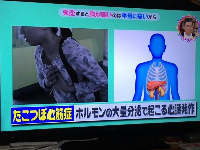 失恋 ステロイド分泌 心臓 痛み たこつぼ心筋症に関連した画像-04