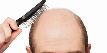 ハゲ 髪の毛に関連した画像-01