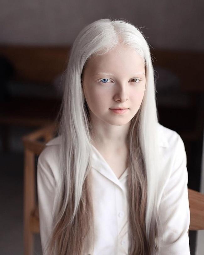 アルビノ オッドアイ ヘテロクロミア 先天性白皮症 虹彩異色症 ロシアに関連した画像-02