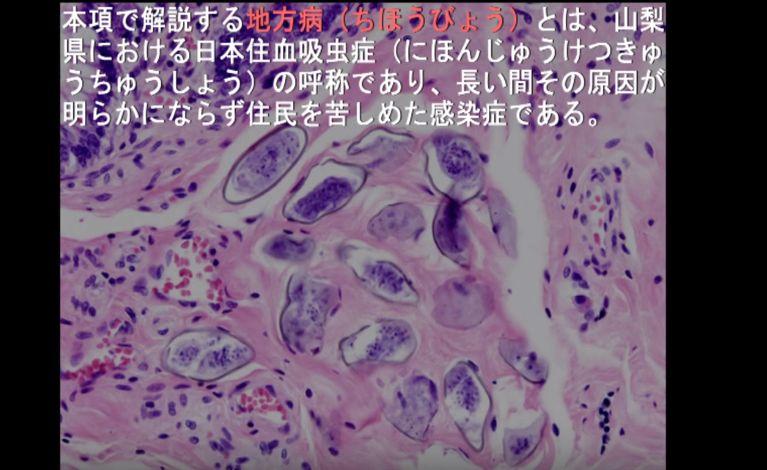 日本住血吸虫 サウンドノベルに関連した画像-01