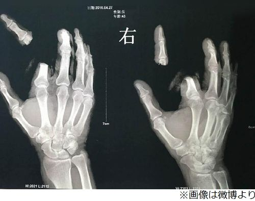 ネット デマ 風説 男性 指 切断 中国に関連した画像-03