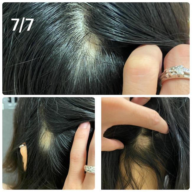 新型コロナ コロナワクチン 接種 女性 ハゲ 脱毛症に関連した画像-03