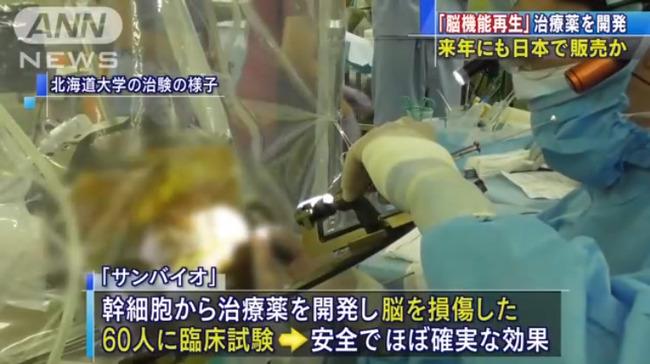 脳損傷 脳機能 治療薬 サンバイオに関連した画像-01