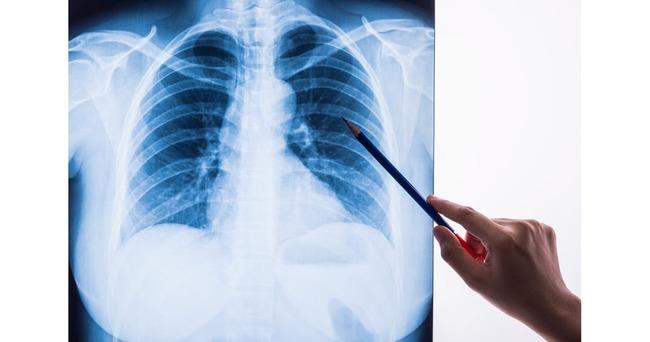 【ヤバイ】今度はカザフスタンで「正体不明の肺炎」の集団発病が確認される…致死率は新型コロナより高い