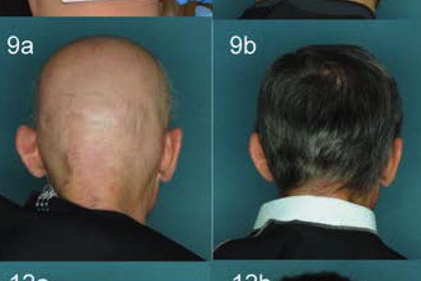 ハゲ 朗報 円形脱毛症 毛根 回復 薬 研究に関連した画像-01