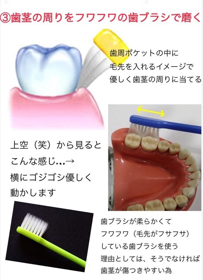 歯 歯科衛生士 オタク ハミガキに関連した画像-04