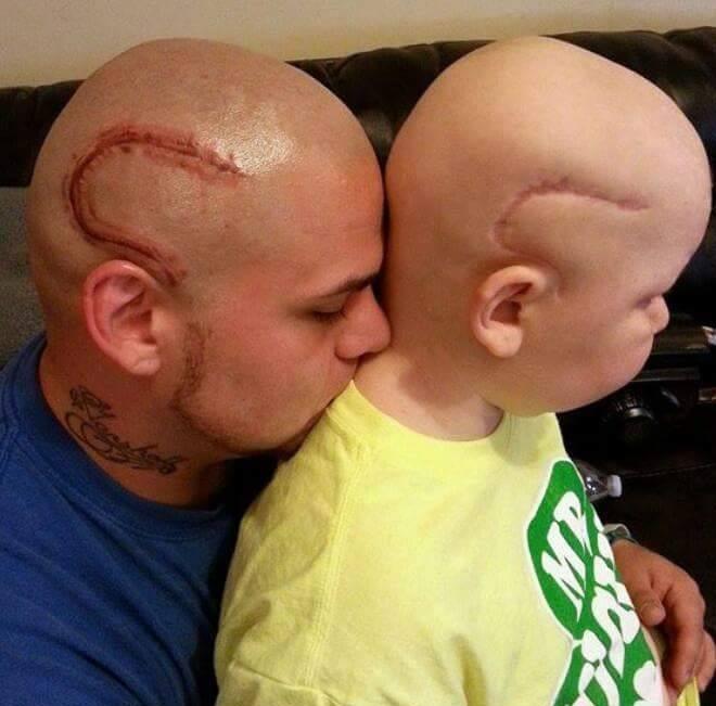 父親 子ども 手術痕 タトゥーに関連した画像-03