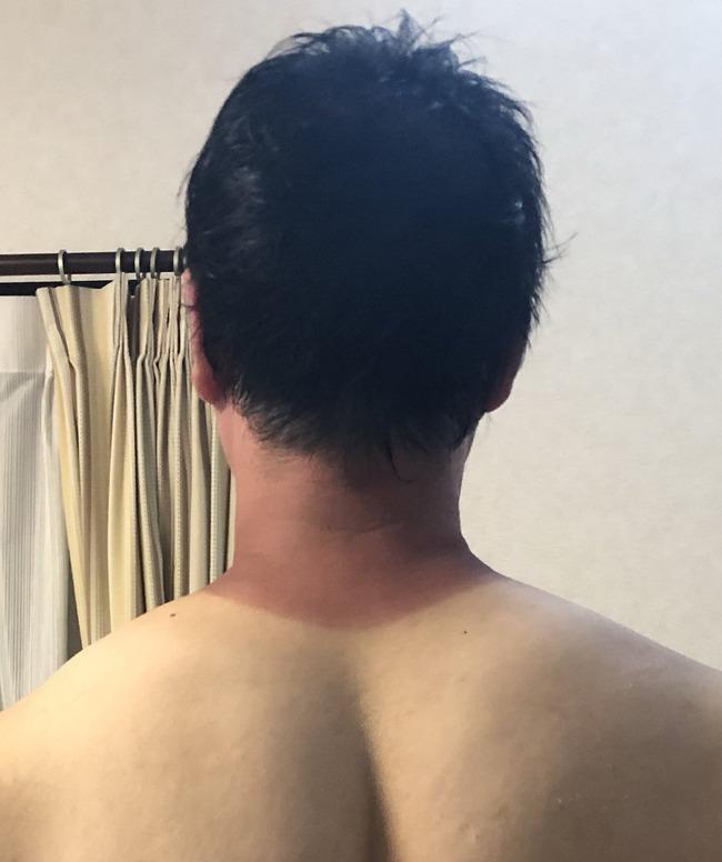 コミケ 熱中症 看護師 日焼けに関連した画像-02