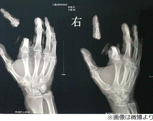 ネット デマ 風説 男性 指 切断 中国に関連した画像-04