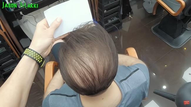 ハゲ ふさふさ 美容師に関連した画像-11