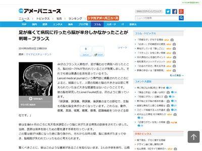 脳 半分ないに関連した画像-02