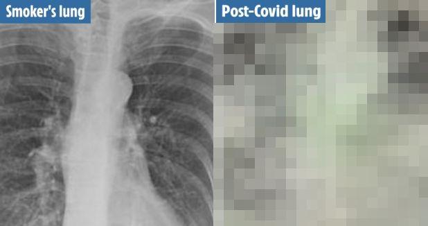 新型コロナウイルス 感染者 肺 レントゲン 画像 喫煙者 比較に関連した画像-01