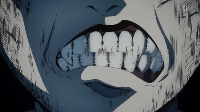 歯ぎしり 対策 マウスピース アゴ 城之内化に関連した画像-01