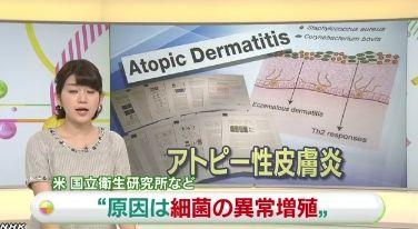 アトピー 皮膚病 アレルギーに関連した画像-01
