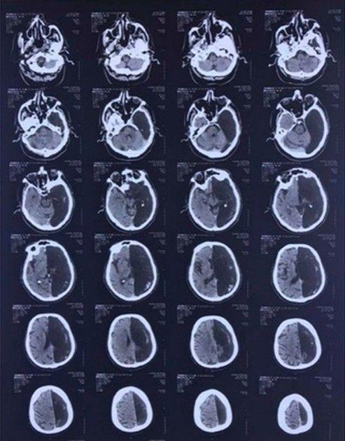 男性 左脳 なしに関連した画像-03
