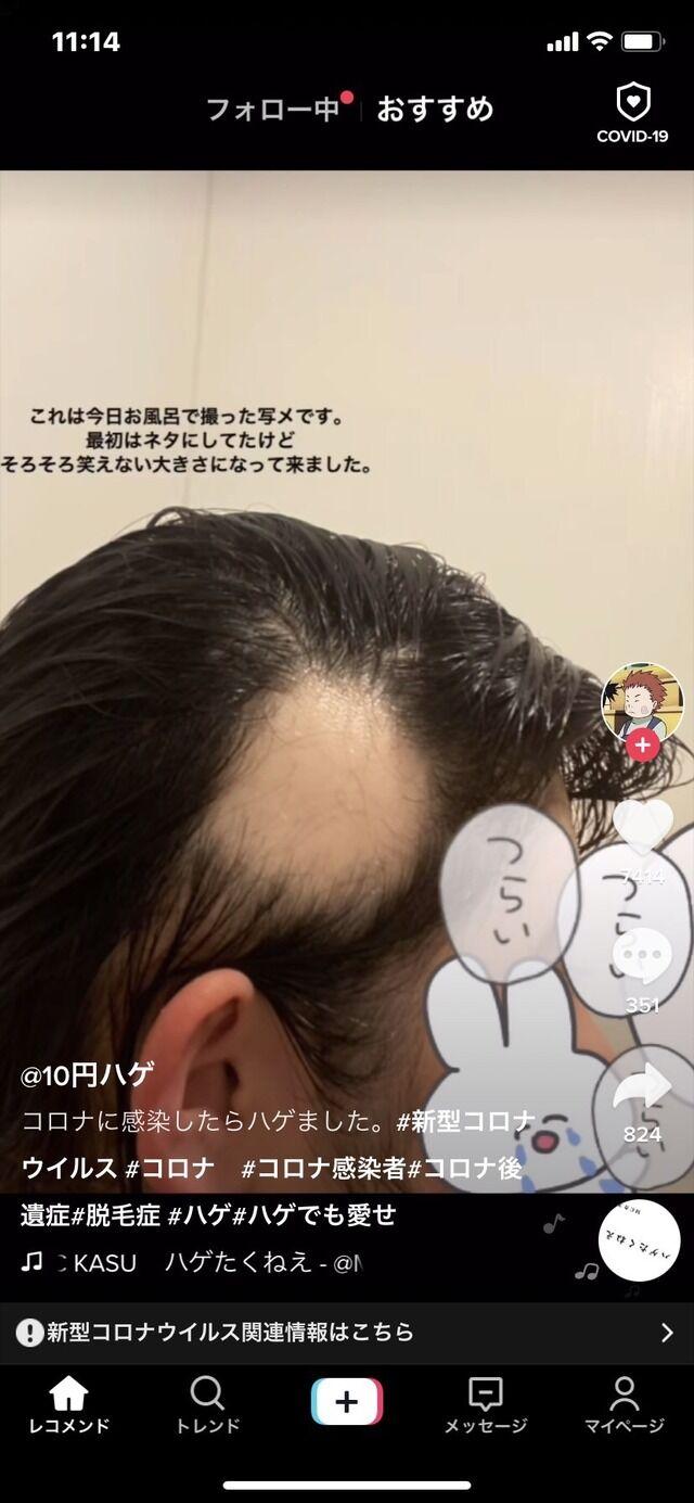 新型コロナ 女子大生 後遺症 ハゲ 脱毛に関連した画像-04