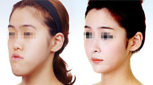 美容整形に関連した画像-01