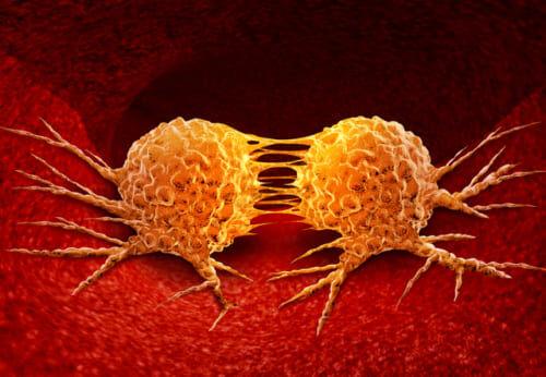 """【凄い】海外の企業があらゆる""""ガン細胞""""を死滅させるウイルスの開発に成功!来年にも臨床実験へ"""