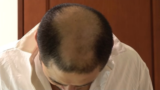 あばれる君 2週間 髪に関連した画像-09