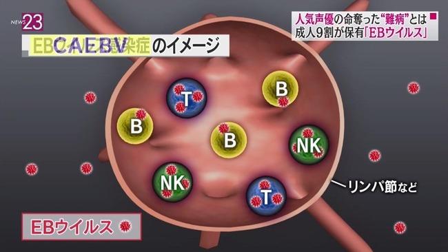声優 松来未祐 病気 難病 慢性活動性EBウイルス感染症 CAEBV NEWS23 早期発見に関連した画像-14