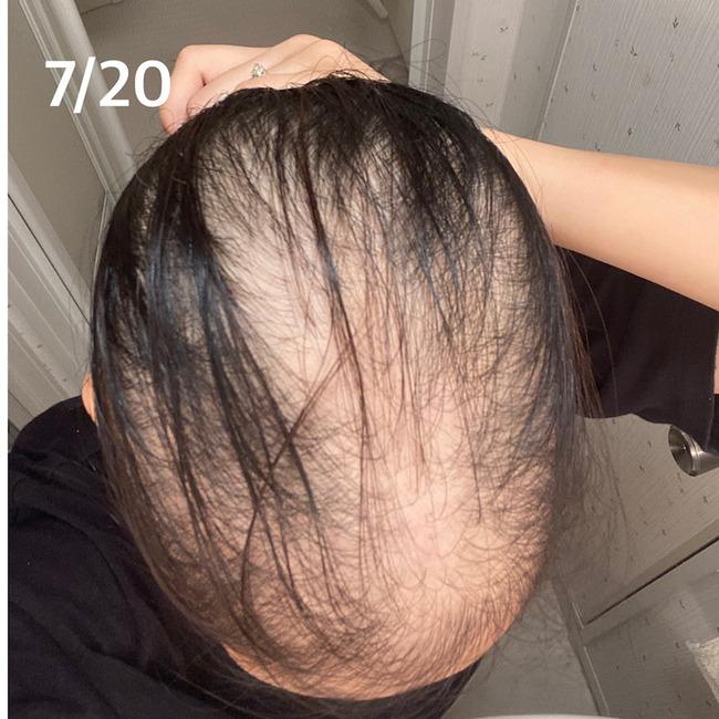 新型コロナ コロナワクチン 接種 女性 ハゲ 脱毛症に関連した画像-06