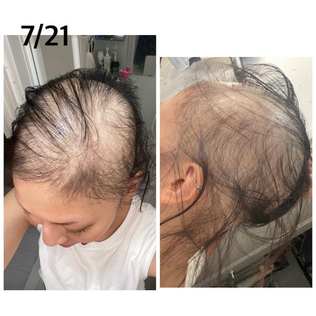 新型コロナ コロナワクチン 接種 女性 ハゲ 脱毛症に関連した画像-07
