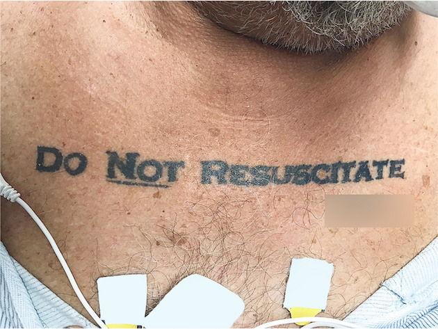 医師 ジレンマ 蘇生 入れ墨 タトゥーに関連した画像-03