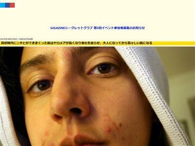ニキビ 学生に関連した画像-02