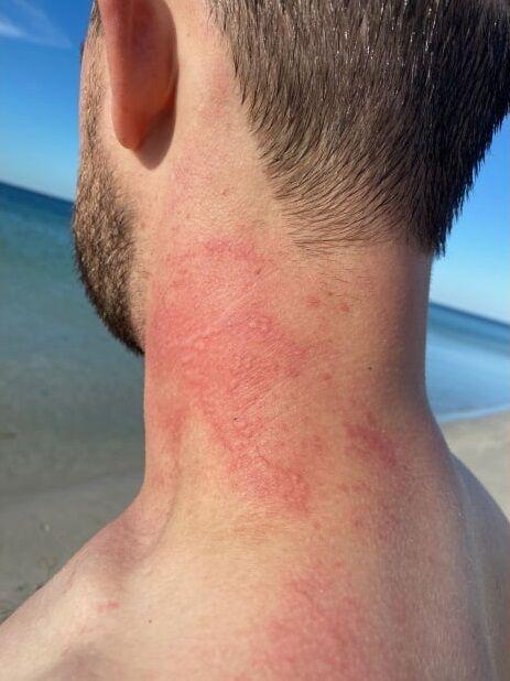 オーストラリア タコ 激怒 男性 負傷 ミミズ腫れに関連した画像-03