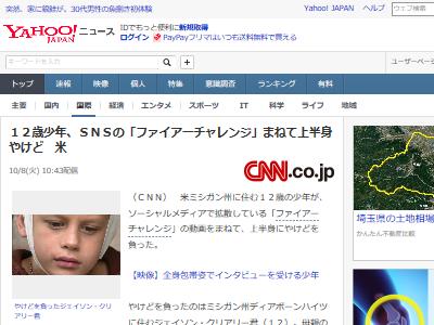 SNS ファイアーチャレンジ 動画 真似 12歳 少年 やけど 火傷に関連した画像-02