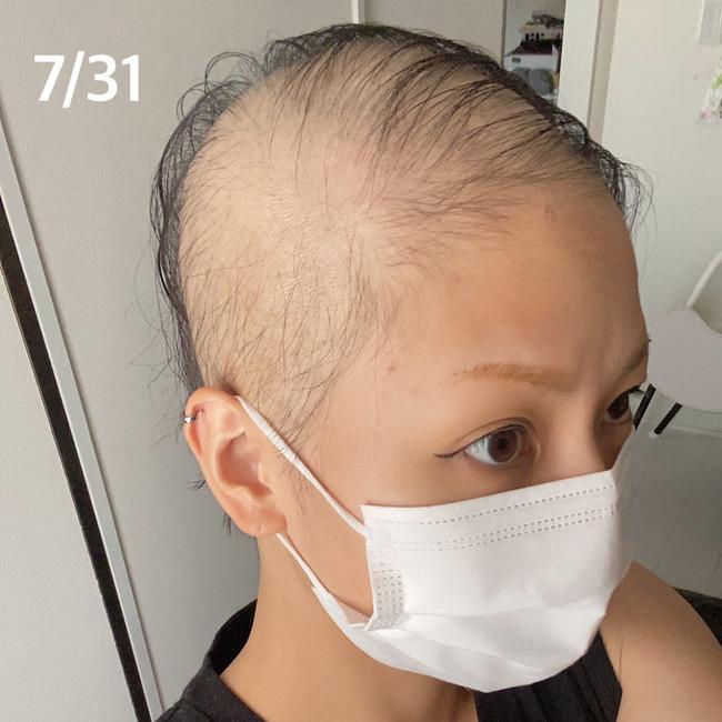 新型コロナ コロナワクチン 接種 女性 ハゲ 脱毛症に関連した画像-09