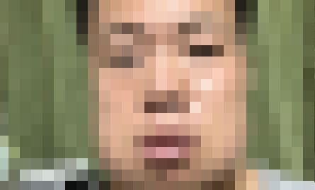 親知らず 4本 抜歯 男性 顔 腫れるに関連した画像-01