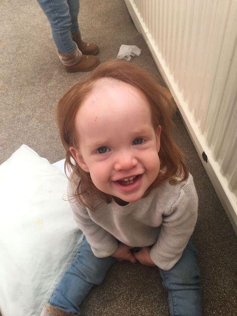 女児 除毛クリーム 頭 塗る 前髪 ハゲに関連した画像-04