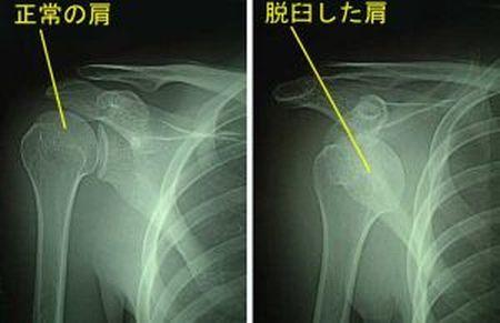 アメフト 脱臼に関連した画像-01