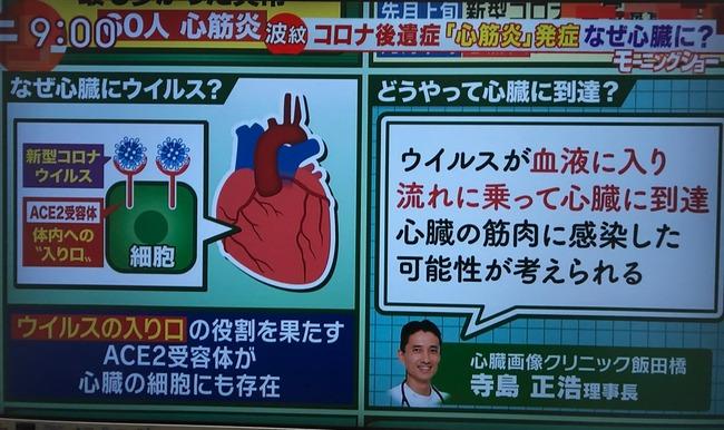 新型コロナ 新型コロナウイルス 心臓 心筋炎 後遺症 に関連した画像-03