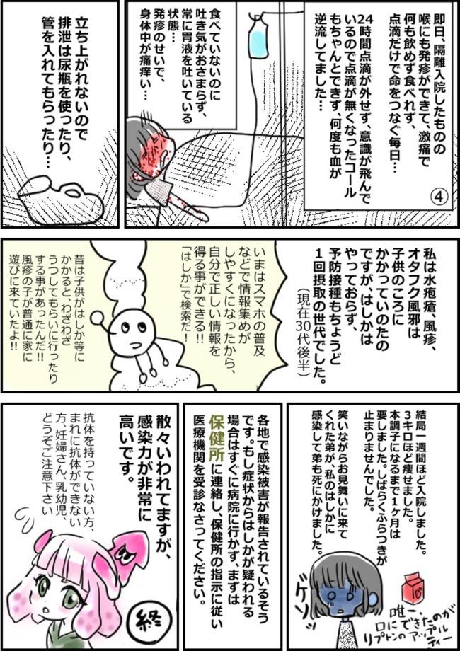 はしか 麻疹 漫画 実録 体験に関連した画像-02
