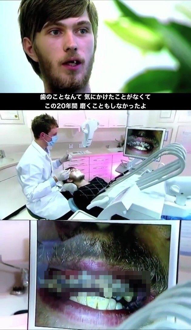 歯磨き 虫歯 インプラントに関連した画像-03
