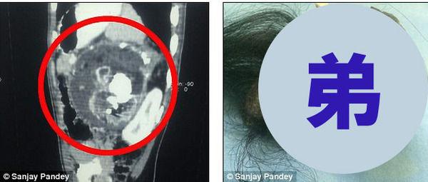 双子 弟 寄生 髪の毛 歯に関連した画像-04