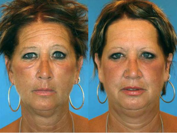 タバコ 悪影響 老け顔に関連した画像-03