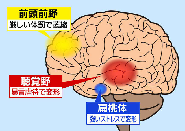 いじめ イラスト 脳 後遺症 に関連した画像-03