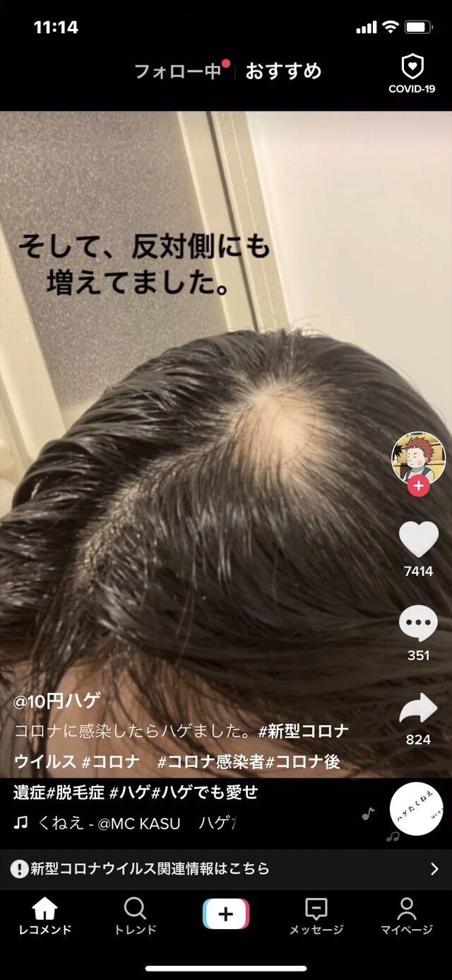 新型コロナ 女子大生 後遺症 ハゲ 脱毛に関連した画像-05