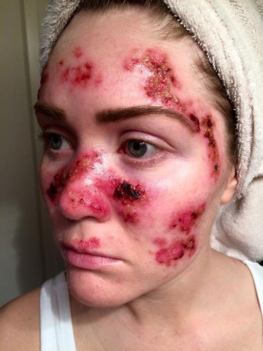日光浴 皮膚がんに関連した画像-03