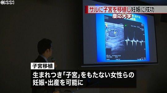 サル子宮移植に関連した画像-01